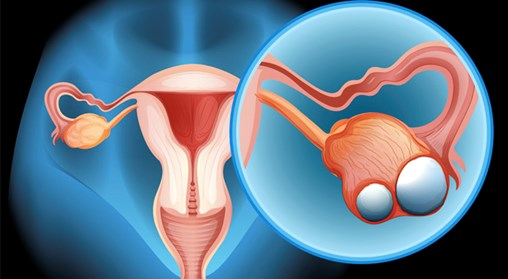 Triplet Combo Yields Durable Responses in Recurrent Epithelial Ovarian Cancer